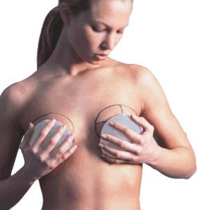 Sceglie le protesi seno